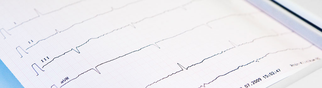 Kardiologie-München-Harlaching-Dr-Olaf-Mühling-Herz-Spezialist-Internist-Leistungen-4